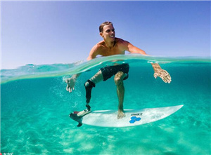 男子冲浪被虎鲸咬掉小腿 戴假肢重返海洋